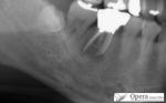 歯の膿袋 浜松