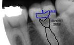 浜松市 インプラント 歯周病 虫歯
