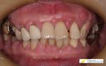 浜松市 歯科 白い歯 審美歯科 かみ合わせ 入れ歯
