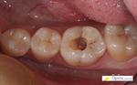 浜松市 虫歯
