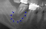 浜松市 歯を残す 膿袋