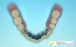 インプラント 歯周病 矯正