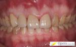 浜松市 審美歯科 白い歯 オールセラミクス