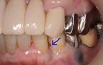 歯科再生療法