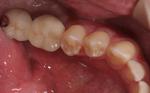松市 インプラント 歯周病 虫歯