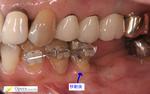 浜松市 インプラント 歯周病 矯正 歯科