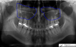 副鼻腔炎 上顎洞炎 歯が痛い