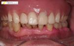 義歯 入れ歯 インプラント 歯周病 噛み合わせ