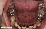 浜松市 歯科 歯周病