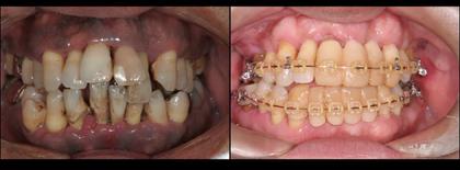 浜松市 歯周病 インプラント 虫歯