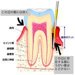 歯周ポケット 浜松市 インプラント 歯周病 矯正