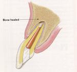 外科的歯内療法術後.jpg