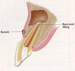 外科的歯内療法術直後.jpg