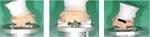 浜松市 インプラント 再生療法 歯周病 咬み合わせ 顎関節症